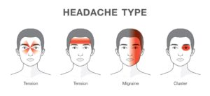 Types of headaches